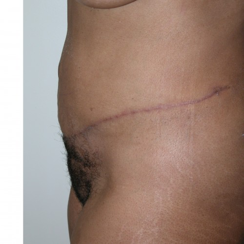 Abdominoplasty 36 After Photo