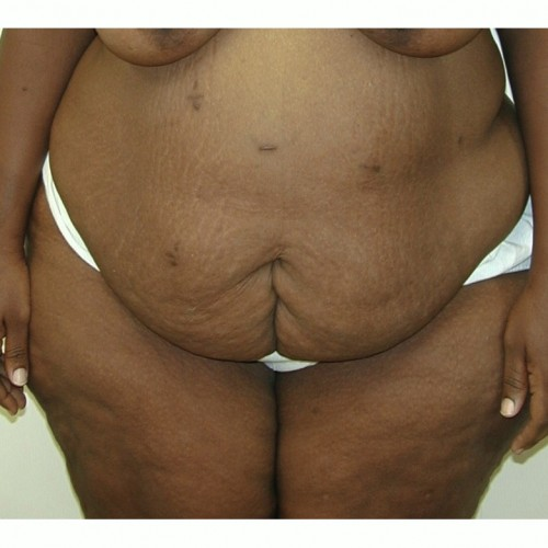 Abdominoplasty 36 Before Photo