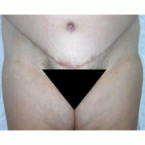 Abdominoplasty 37 After Photo