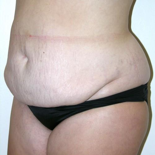 Abdominoplasty 37 Before Photo