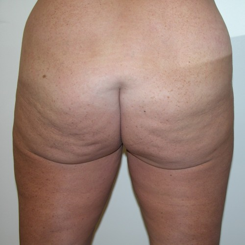 Abdominoplasty 8 Before Photo