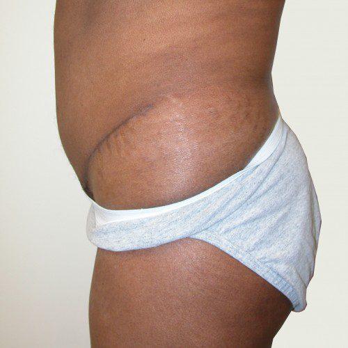 Abdominoplasty 9 After Photo