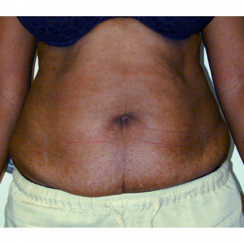 Abdominoplasty 9 Before Photo