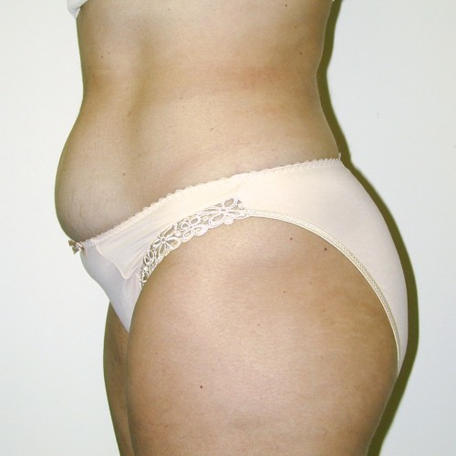 Abdominoplasty 38 Before Photo