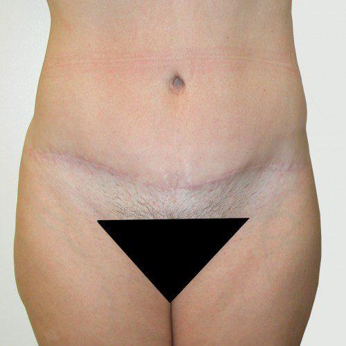 Abdominoplasty 10 After Photo