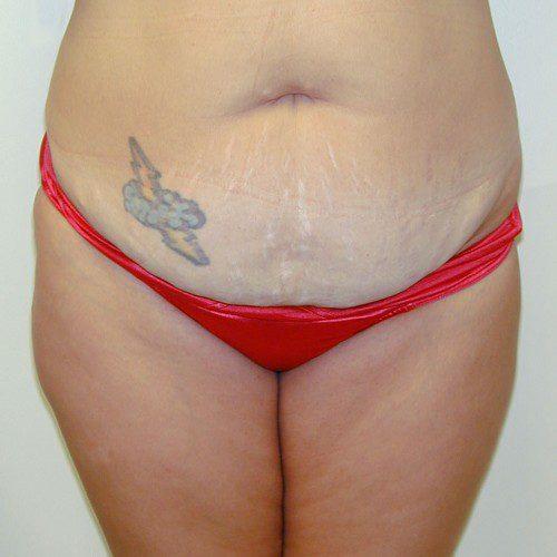 Abdominoplasty 10 Before Photo