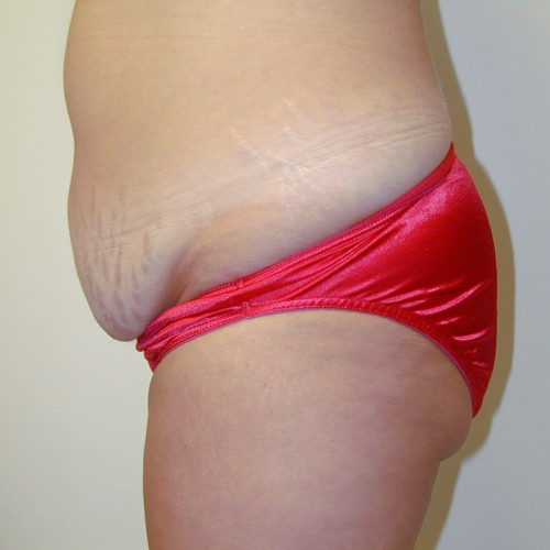 Abdominoplasty 10 Before Photo