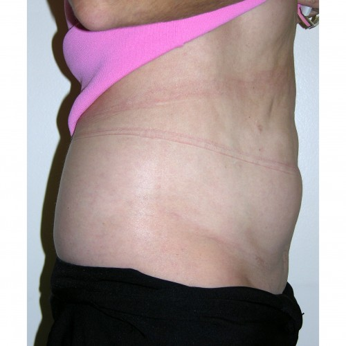 Abdominoplasty 11 Before Photo