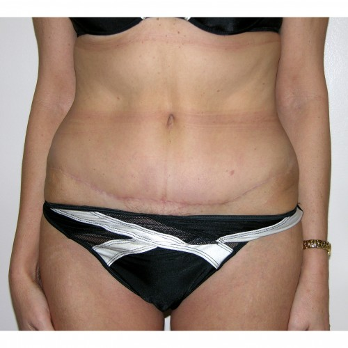 Abdominoplasty 12 After Photo