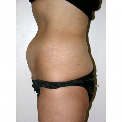 Abdominoplasty 12 Before Photo