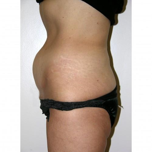 Abdominoplasty 12 Before Photo
