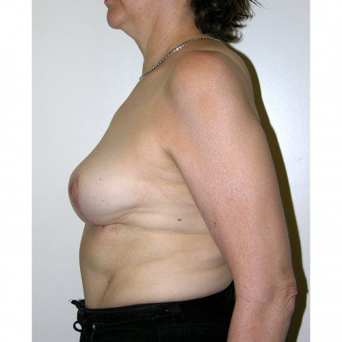 Breast Asymmetry 8 After Photo