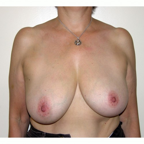 Breast Asymmetry 8 Before Photo