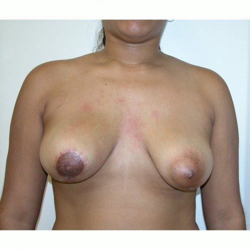Breast Asymmetry 9 After Photo