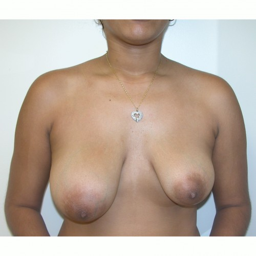 Breast Asymmetry 9 Before Photo