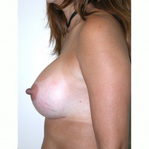Breast Augmentation 33 After Photo