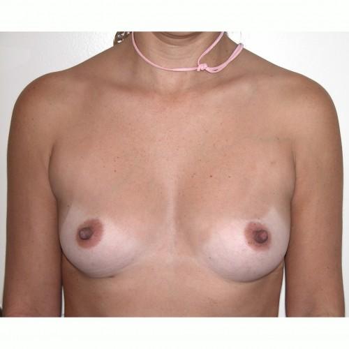 Breast Augmentation 33 Before Photo