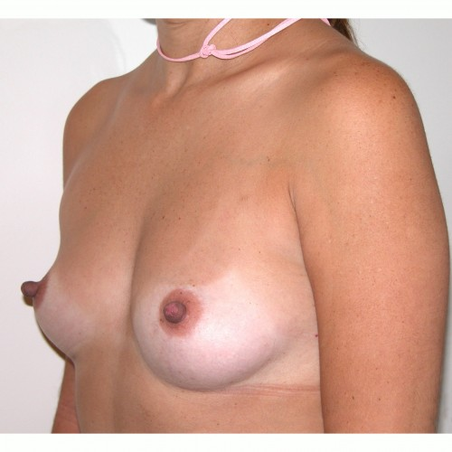 Breast Augmentation 33 Before Photo