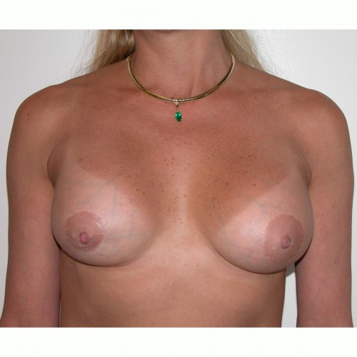 Breast Augmentation 32 After Photo