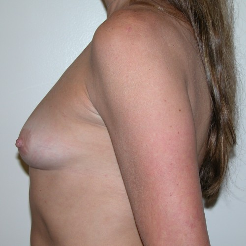 Breast Augmentation 32 Before Photo