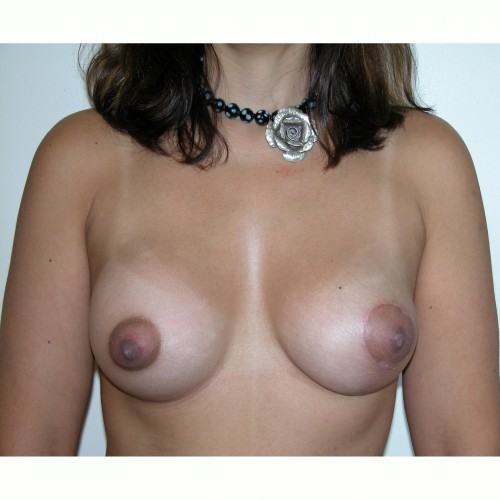 Breast Augmentation 31 After Photo