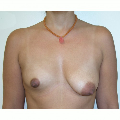 Breast Augmentation 31 Before Photo