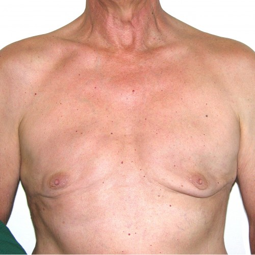 Gynaecomastia 1 After Photo