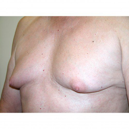 Gynaecomastia 1 Before Photo