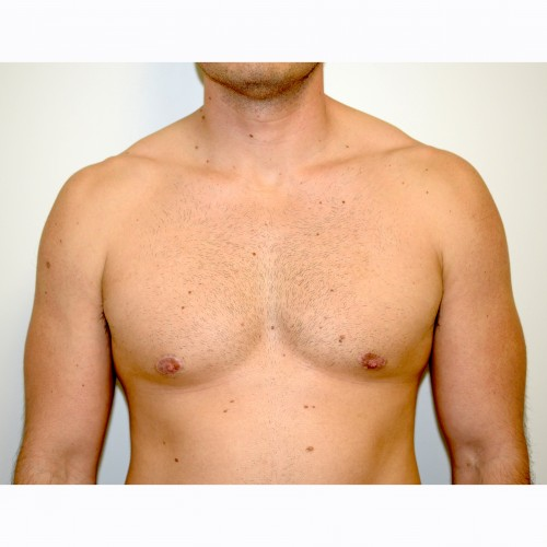 Gynaecomastia 2 After Photo