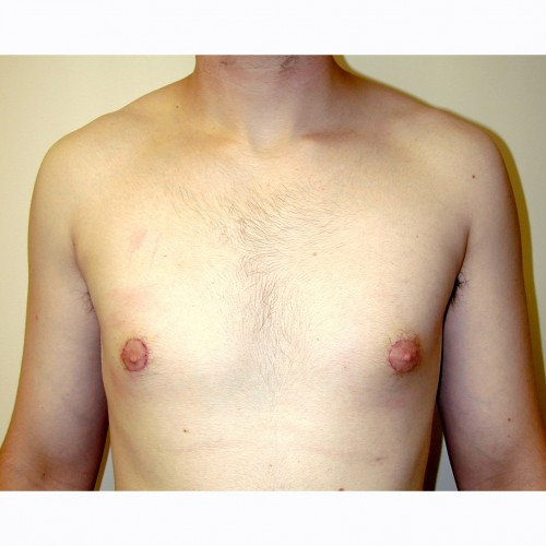Gynaecomastia 3 After Photo