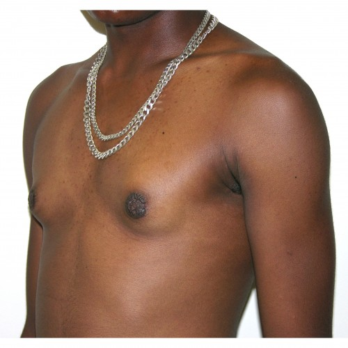 Gynaecomastia 4 After Photo