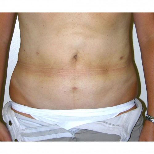Liposuction 012 After Photo