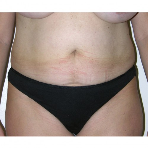Liposuction 012 Before Photo