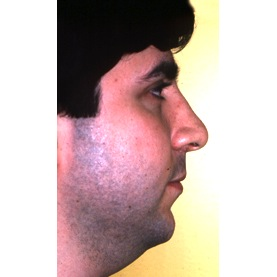 Rhinoplasty 903 After Photo