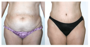Sex after a tummy tuck