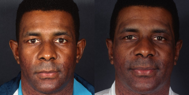 Otoplasty Before And After Surgery