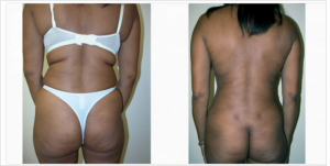 Before and After Back Liposuction