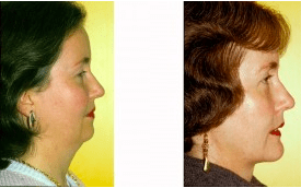 Before and After Chin Liposuction