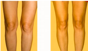 Before and After Knee Liposuction