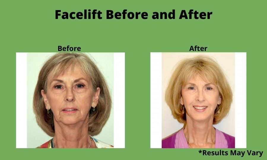 Before and after image showing the results of a facelift performed in Palos Verdes