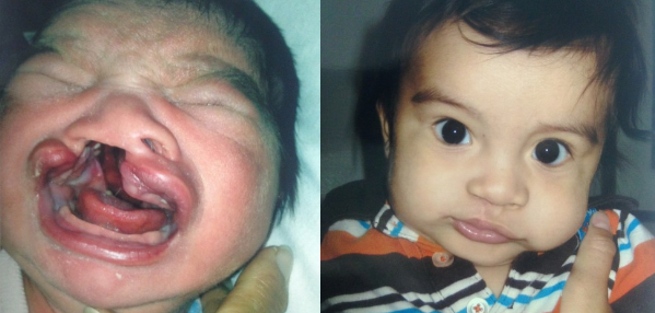 Cleft Lip and Palate Repair Before and After Photos