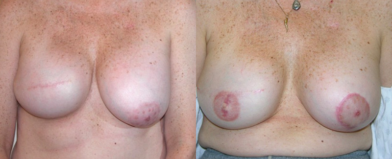 Breast reconstruction patient before and after
