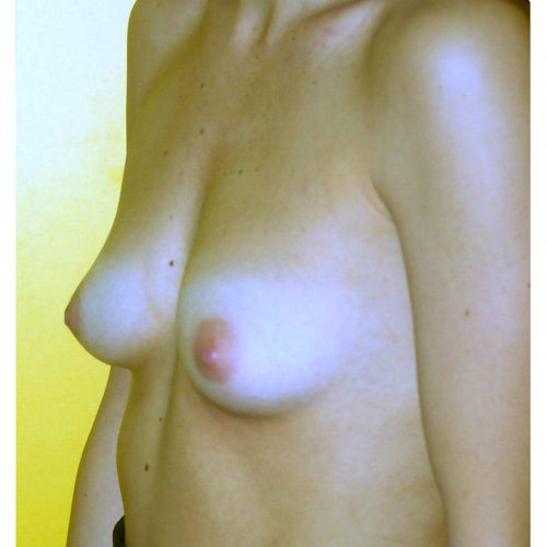 Breast Augmentation 35 Before Photo