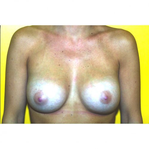 Breast Augmentation 35 After Photo