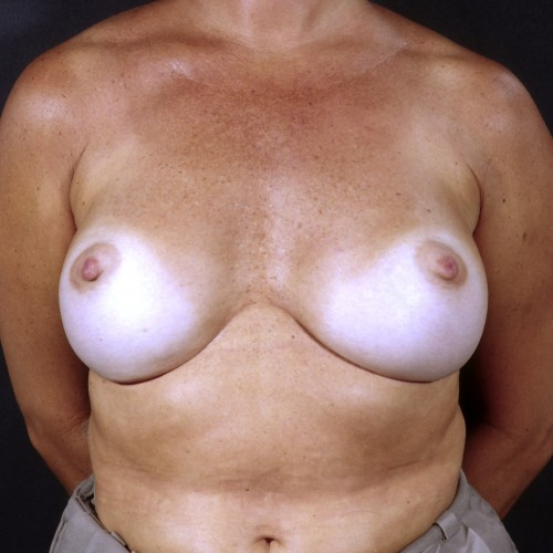 Breast Revision 1 Before Photo