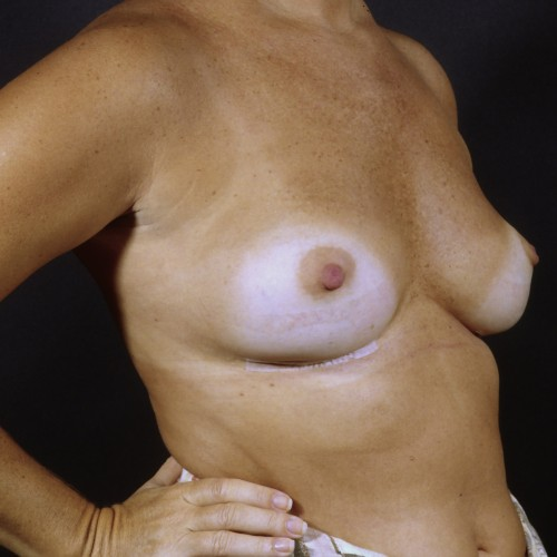Breast Revision 1 After Photo