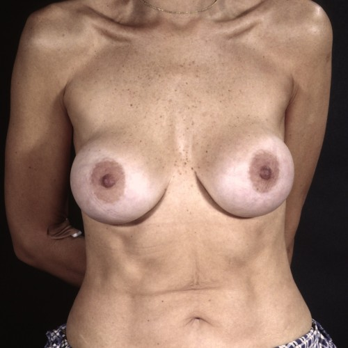 Breast Revision 2 Before Photo
