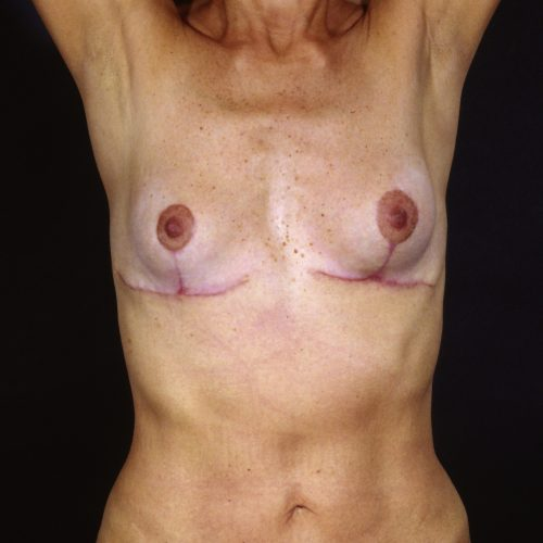 Breast Revision 2 After Photo