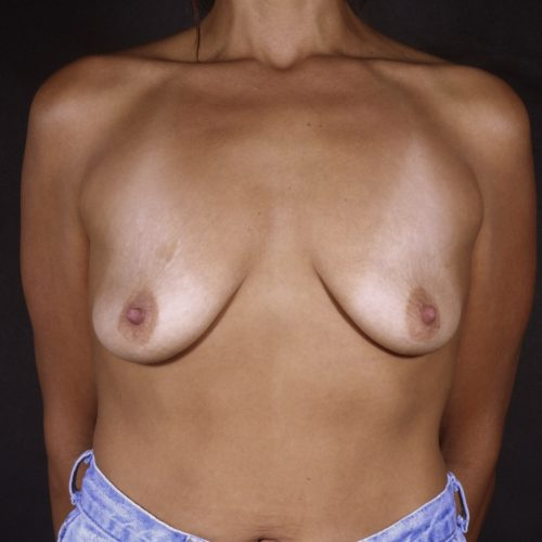 Breast Augmentation 37 Before Photo