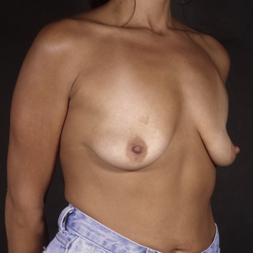 Breast Augmentation 37 Before Photo